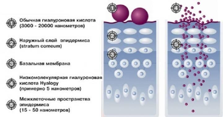 Увеличение груди гиалуроновой кислотой: филлерами и без операции, стоимость +видео