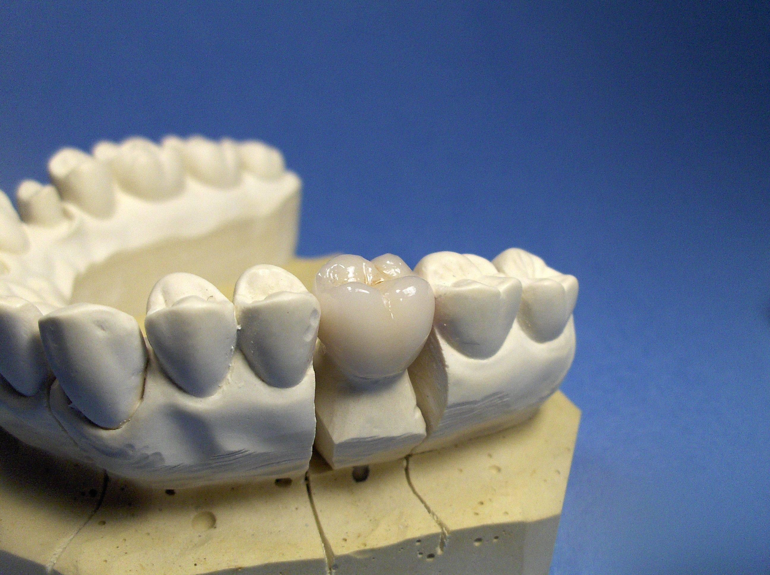 Что такое циркониевые коронки на зубы и чем они хороши