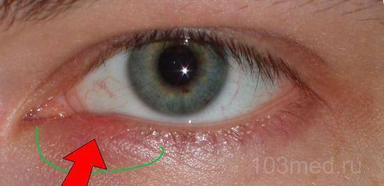 Заболевания кожи вокруг глаз и век. диагностика и лечение