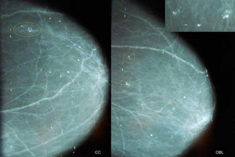 Причины образования микрокальцинатов в груди и способы их лечения