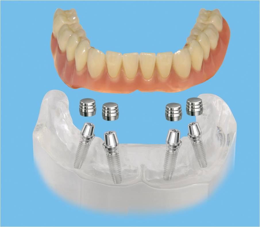 Бюгельные протезы зубов – бюджетный аналог дорогим имплантам