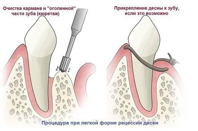 Что делать, если десна отошла от зуба. обязательно ли делать операцию