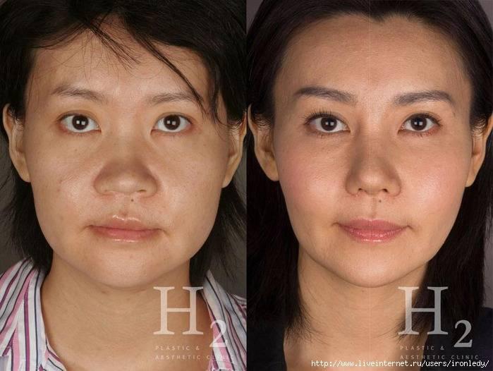 Операция по увеличению глаз: технология проведения, описание, эффект, фото до и после