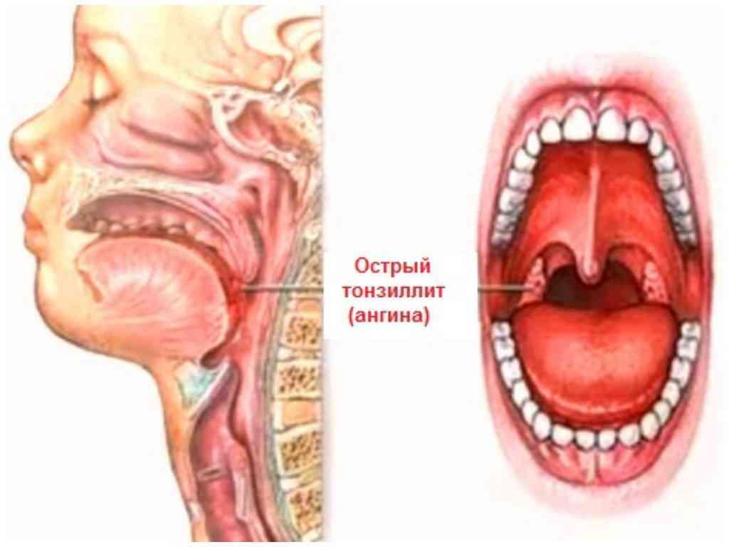 Неочевидная, но прочная связь: почему после удаления зуба болит горло?