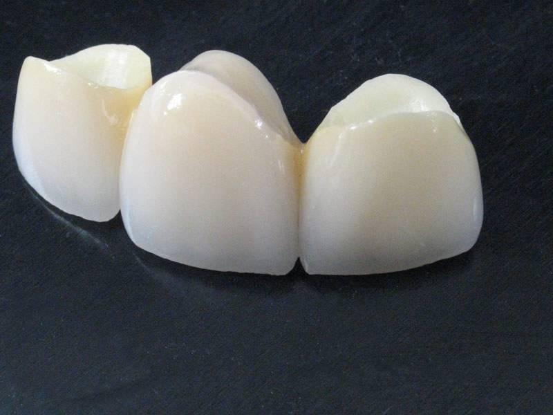 Металлопластмассовые коронки — бюджетный вариант реставрации зубов