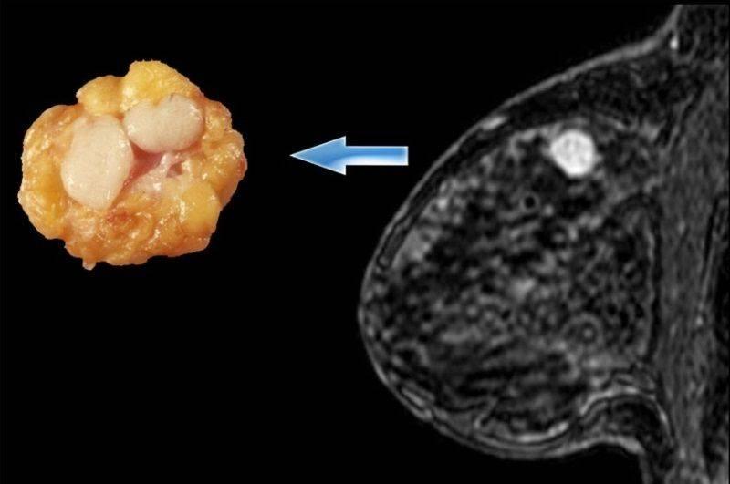 Фиброаденома молочной железы: причины, симптомы и выявление, удаление