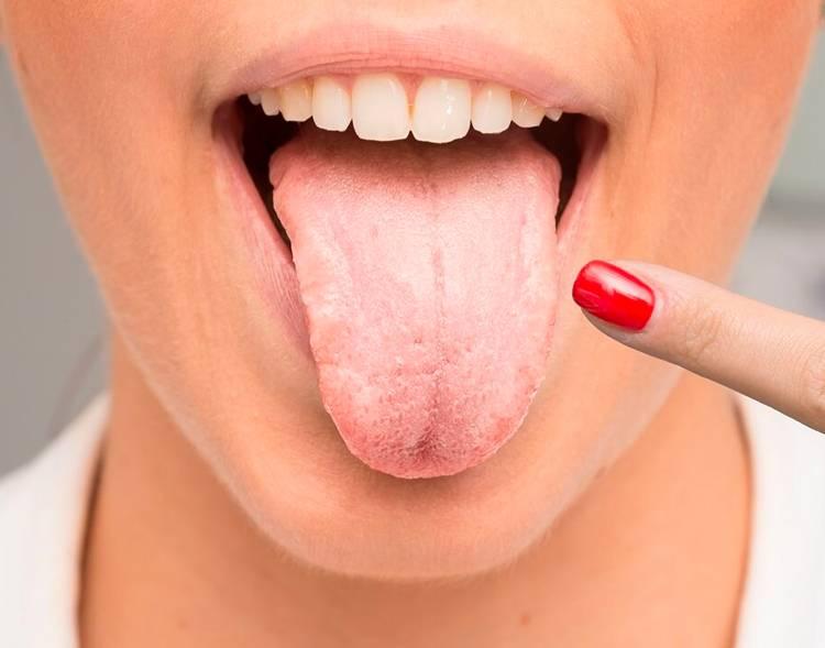 От чего белый налет на языке у взрослых: причины и лечение