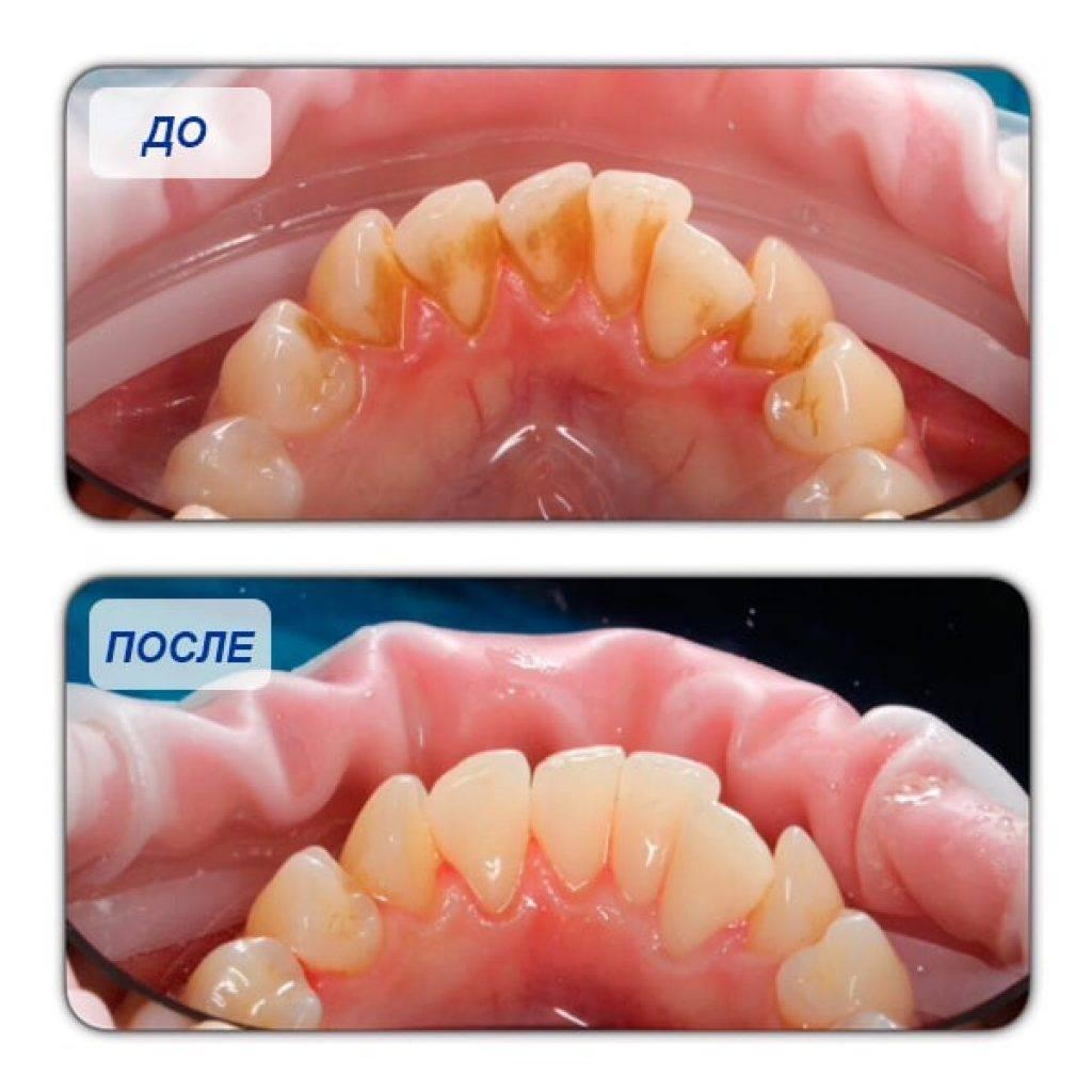 Можно ли беременным делать профессиональную ультразвуковую чистку зубов: не навредит ли использование ультразвука?