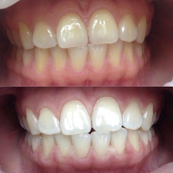Что выбрать из такого многообразия? интересные и доступные способы отбеливания зубов