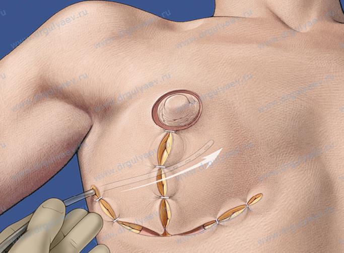 Коррекция втянутых сосков без операции