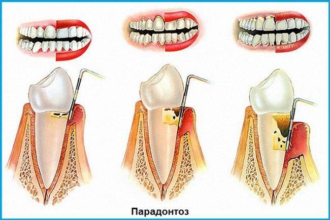 Флюс после удаления зуба