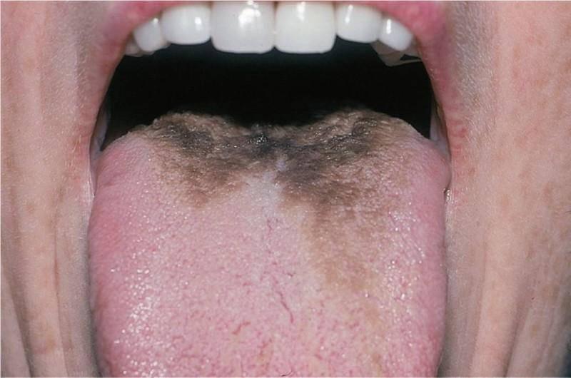 На языке появился коричневый налет? каковы причины такого явления у взрослых, и стоит ли бить тревогу