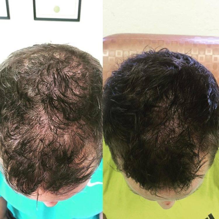 Процедура плазмолифтинга для волос