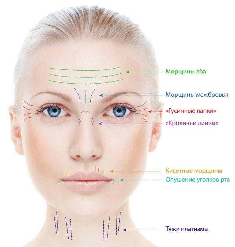 Причины возникновения морщин на щеках и лучшие методы борьбы с ними