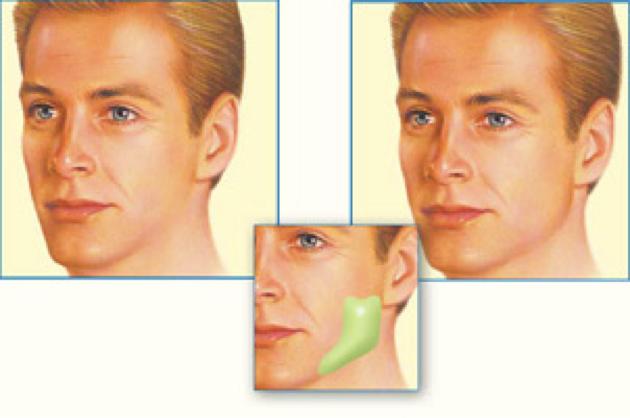 Мандибулопластика (коррекция формы нижней челюсти)