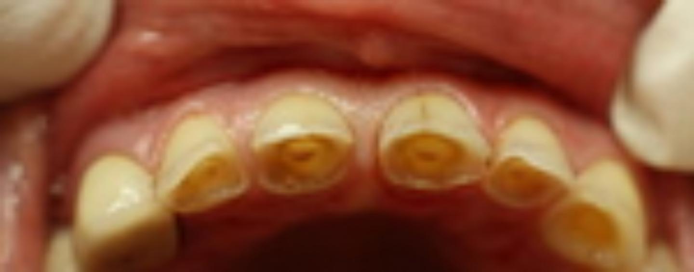 Повышенная стираемость зубов: причины, методы восстановления