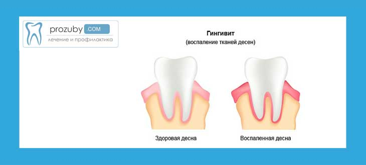 Что делать если у вас десна отошла от зуба