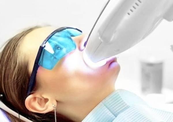 Полезные отзывы о отбеливании зубов методикой zoom