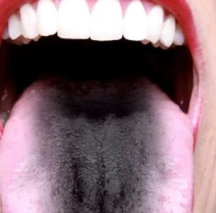 О чем говорит черный налет на языке