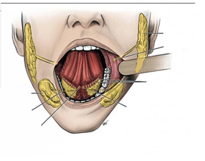 Сиалоаденит подчелюстной слюнной железы — клиника, диагностика и лечение