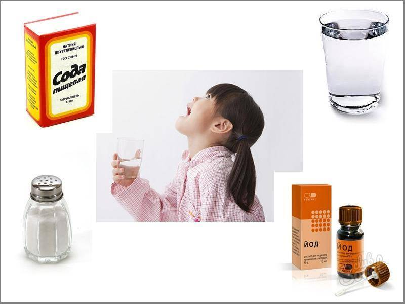 Полоскание горла содой, солью и йодом для всех возрастов