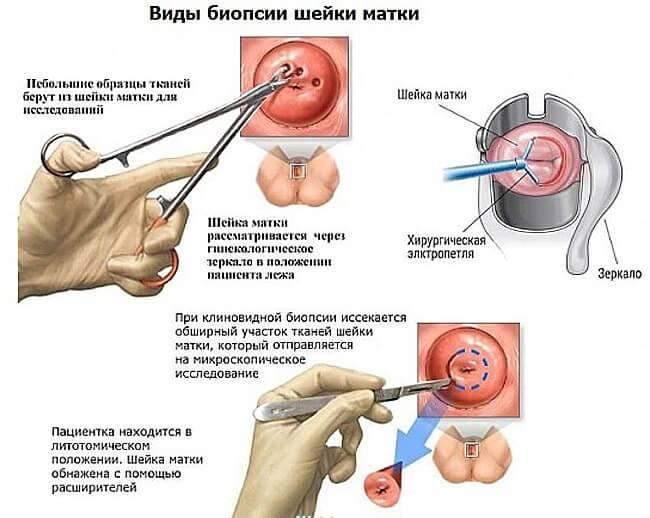Наболевший вопрос: как правильно лечить эрозию шейки матки