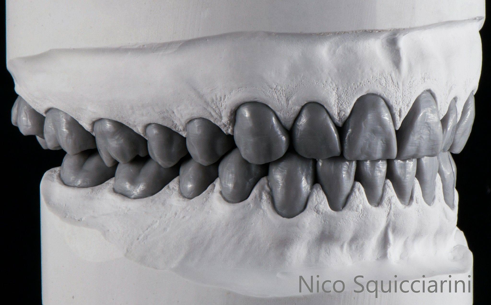 Моделирование зубов из воска: техника восстановления в стоматологии