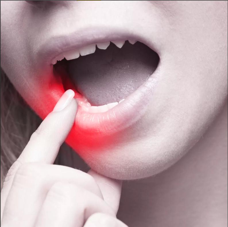 Какие виды стоматита встречаются во рту - симптомы, лечение, признаки