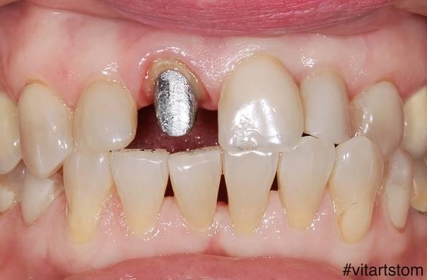 Воспалилась десна около зуба, что делать в домашних условиях, как лечить?