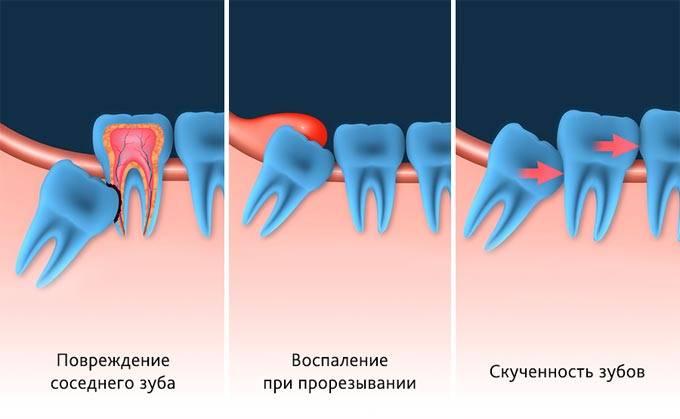 Как удаляют зуб мудрости: показания и последствия