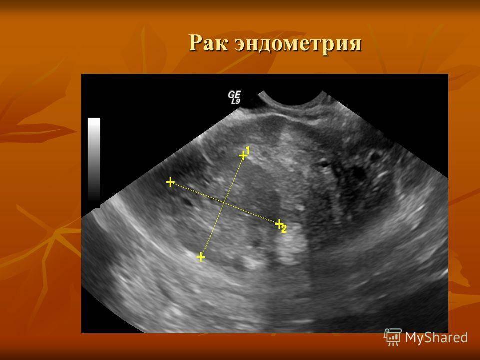 Саркома матки: каков прогноз жизни и симптомы?