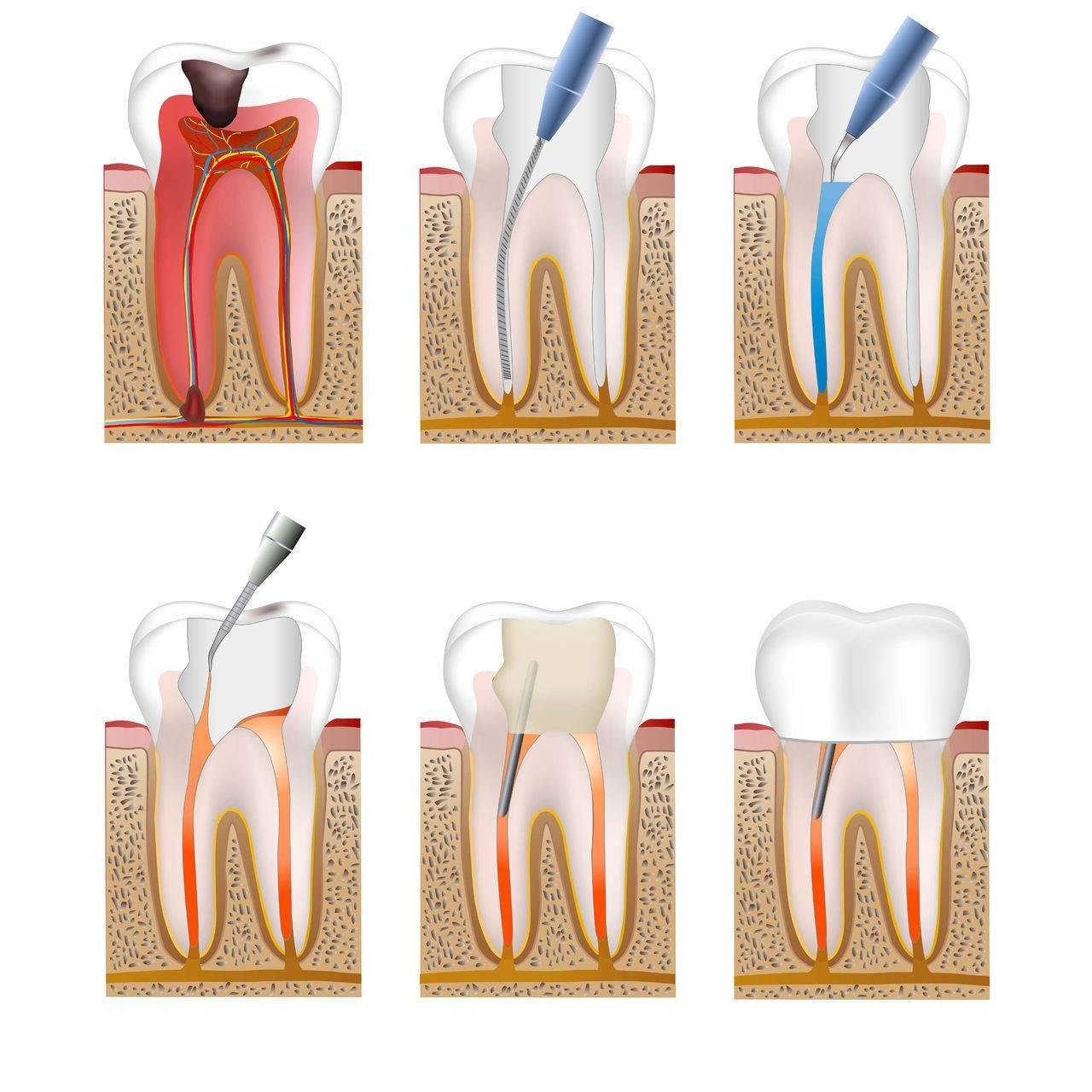 Таблица расположения корней на верхней и нижней челюсти человека: сколько каналов и нервов насчитывается в зубах?