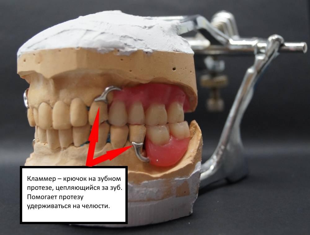 Съемные акриловые протезы на челюсть