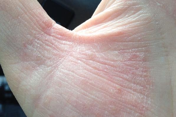 Шелушится кожа между пальцами рук: фото, возможные болезни, лечение