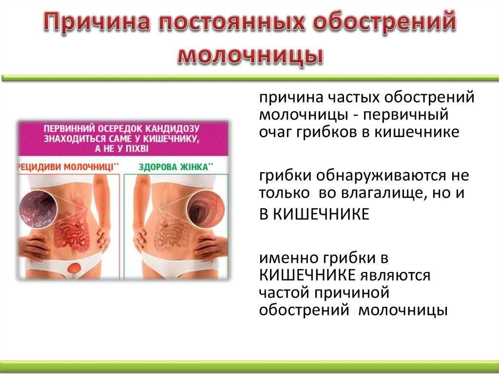 Молочница – причины, симптомы и лечение грибка