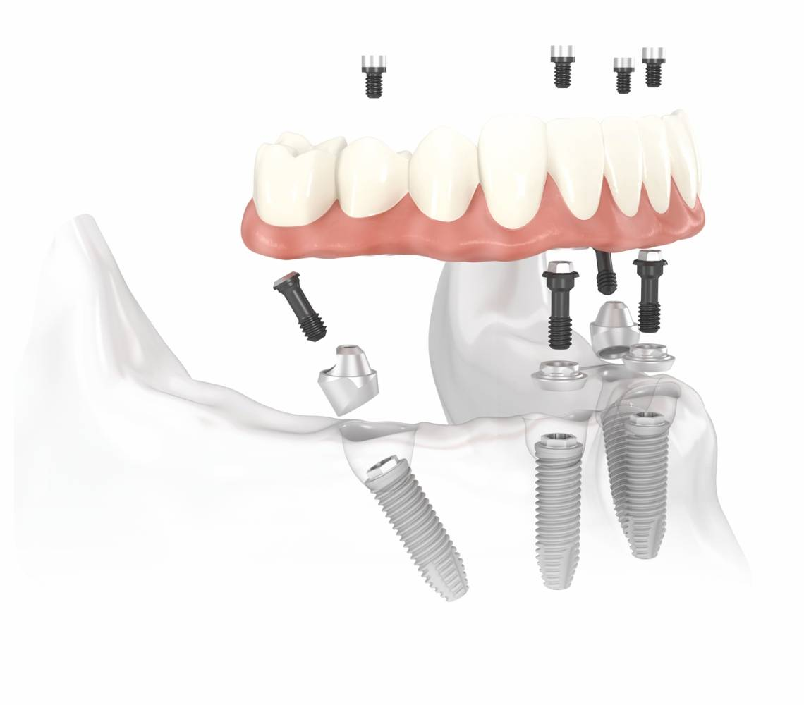Имплантация зубов за 1 день