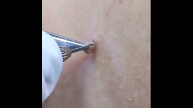 Удаление новообразований с помощью электрокоагуляции