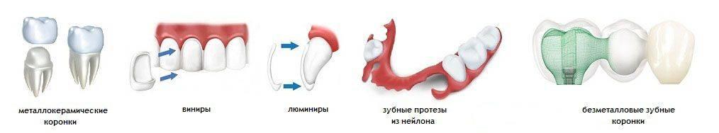 Особенности протезирования зубов у детей при адентии