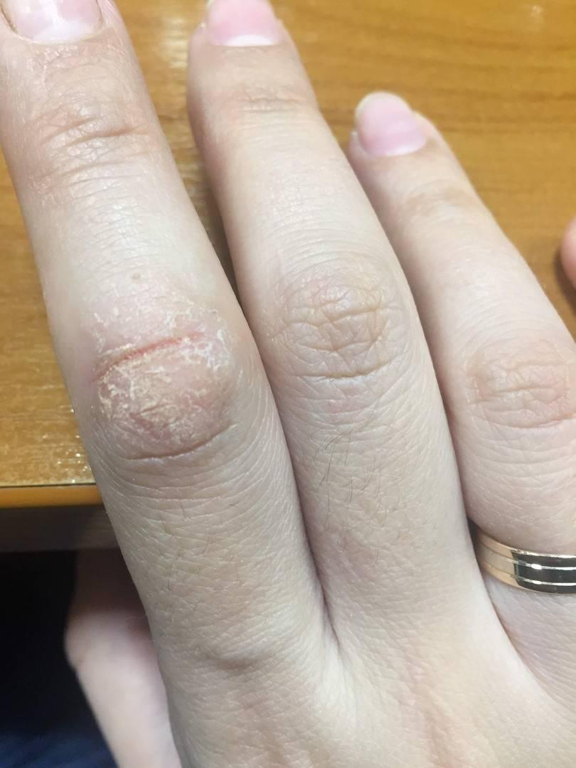 Причины и лечение шелушения кожи на руках и ногах