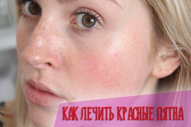 Убираем красные шелушащиеся пятна на лице