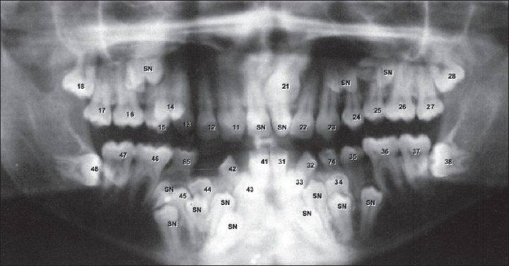 Понятие сверхкомплектных зубов, причины полиодонтии у ребенка и взрослого человека, симптомы с фото и лечение аномалии. почему возникает гипердонтия и как этого избежать