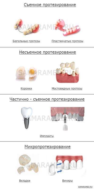 Полезные сведения о зубных протезах и рекомендации
