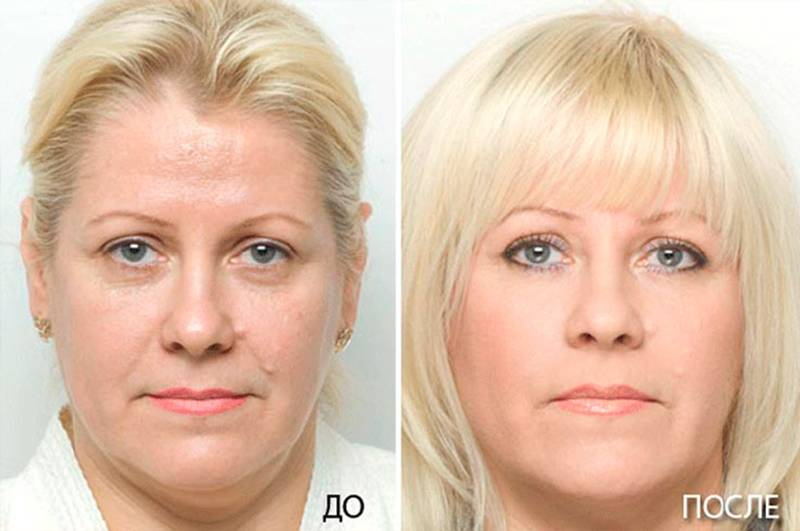 Что нельзя после плазмолифтинга лица: 8 рекомендаций, что запрещается делать после процедуры