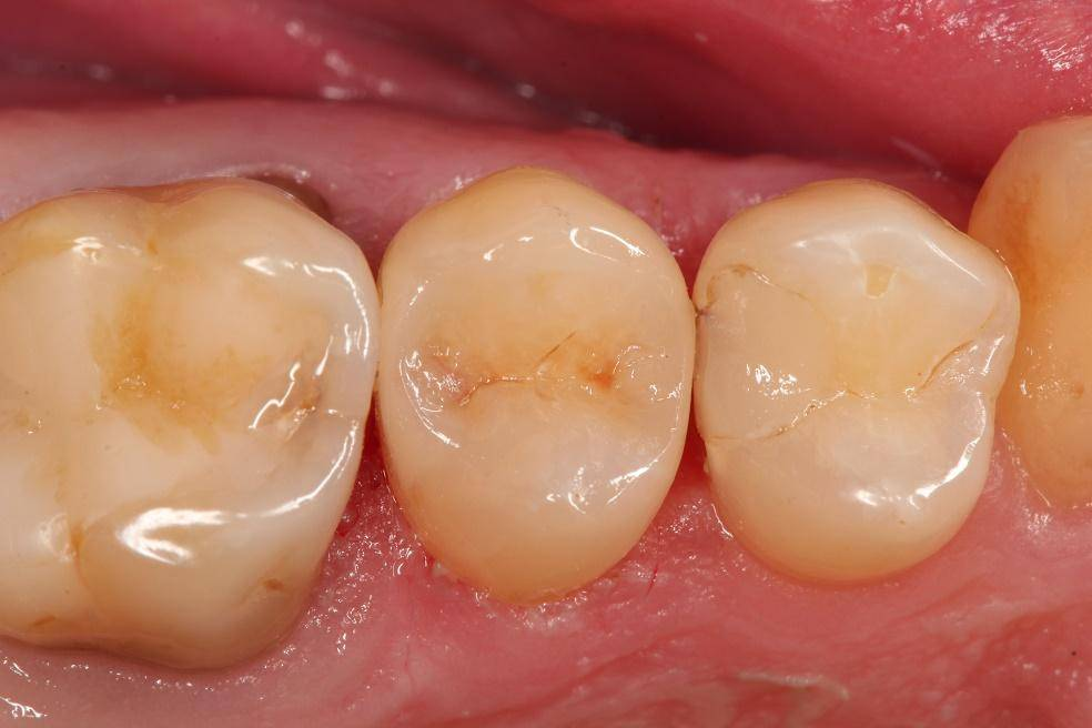Болит зуб после пломбирования реагирует на холодное и горячее