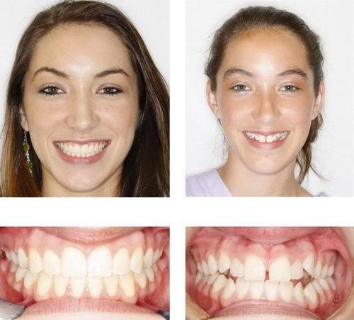 Красивая улыбка: исправление кривых зубов винирами