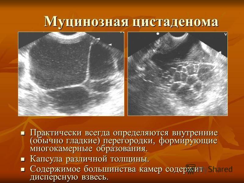 Виды, симптомы и лечение серозной цистаденомы(кистомы)