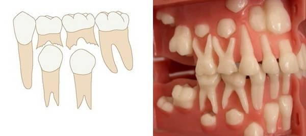Пятый зуб у ребенка коренной или молочный