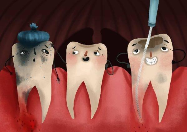 Динамика заживления лунки после удаления зуба на 3-7 день: фото, этапы и уход