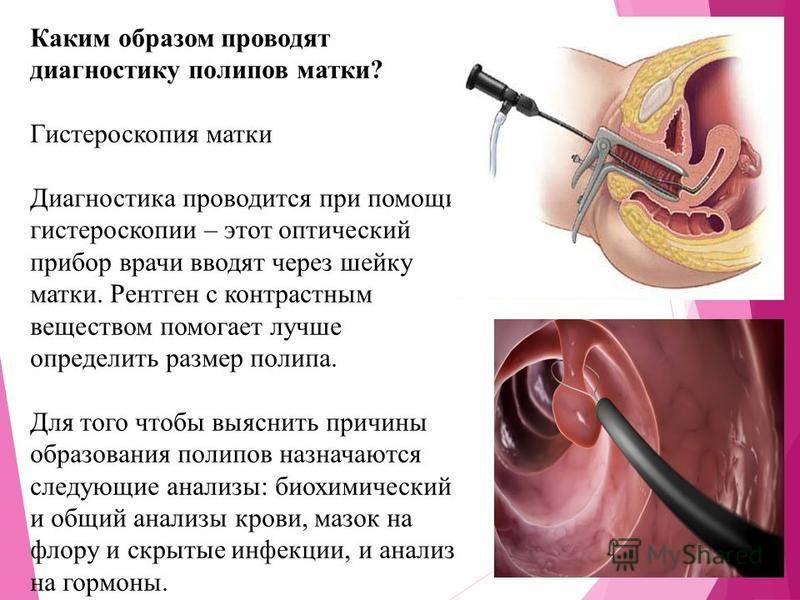 Полип цервикального канала при беременности: удалять ли и чем он опасен