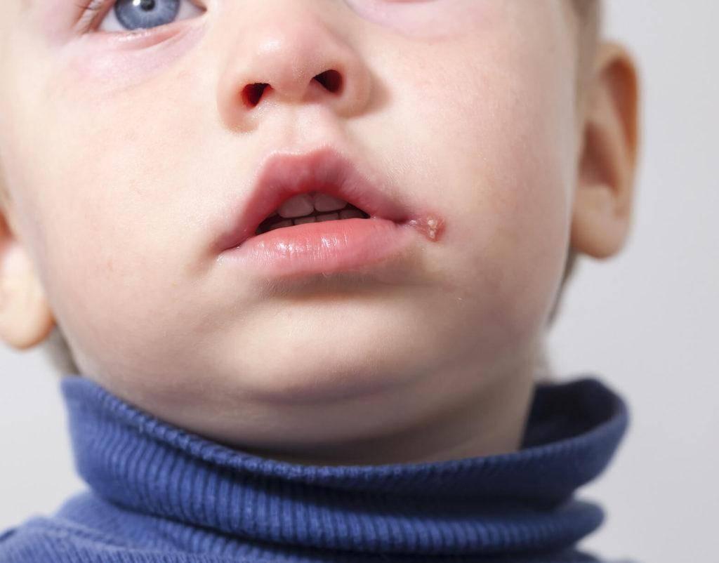 Когда проходит мозоль на губе у грудничка
